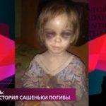 На самом деле. Выпуск от 27 мая 2020 Кто избил трёхлетнего ребенка?